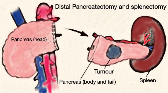 Distal Pancreatectomy and splenectomy