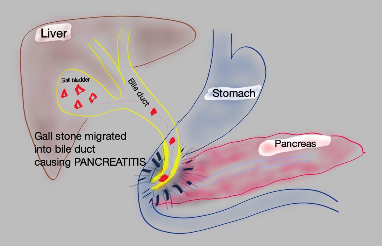 Gall Stone Pancreatitis